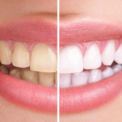 blanquejar dents a través de l'aplicació de substàncies