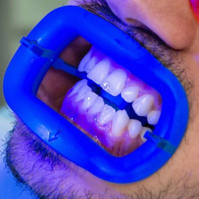 Tratamiento de blanqueamiento dental con láser