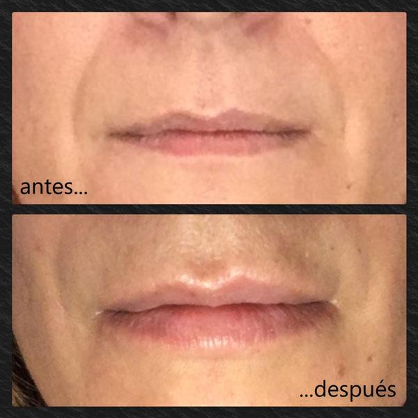 Mujer de 48 años con relleno de labios