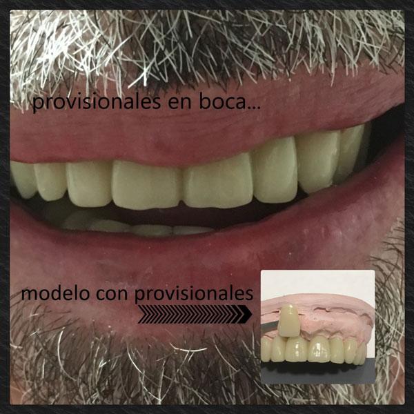 Detalle del modelo de prótesis provisionales