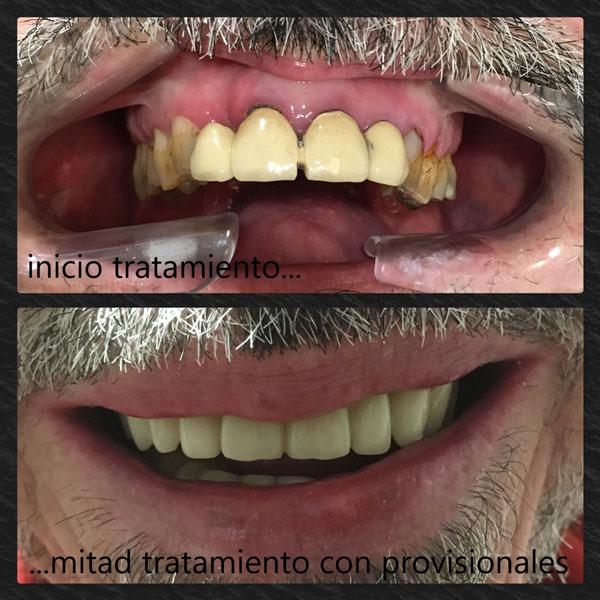 Prótesis provisionales