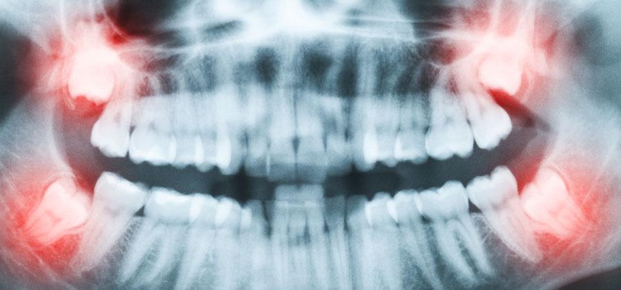 ¿Provocan las muelas del juicio el apiñamiento dental en los incisivos?