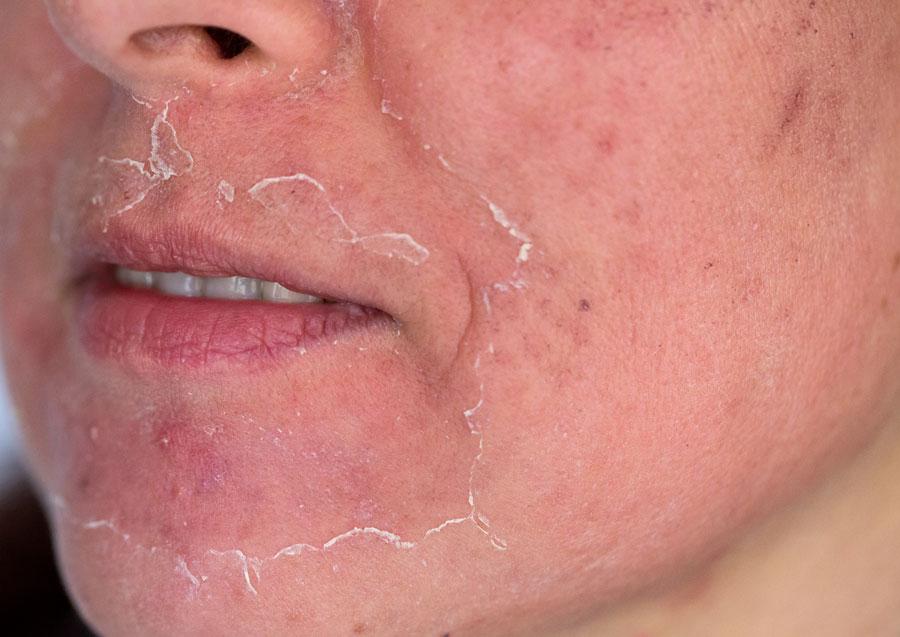 Resultados del peeling químico