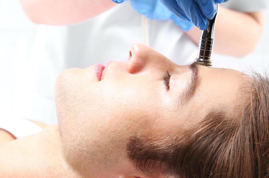 Tratamiento de Peeling químico