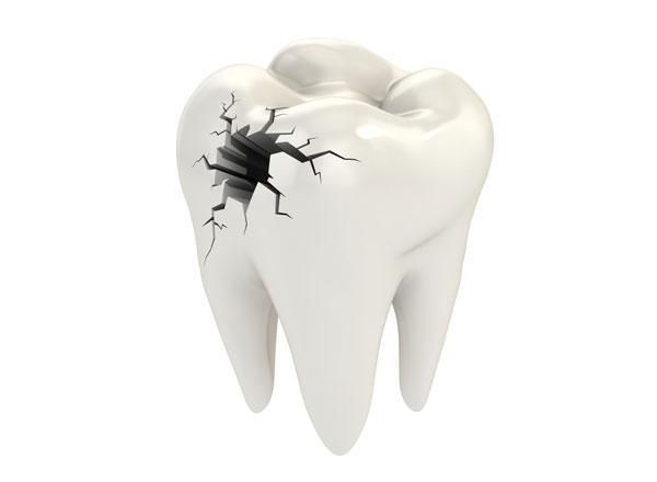 Se te ha roto un diente Descubre qu hacer  Axioma Estudi Dental