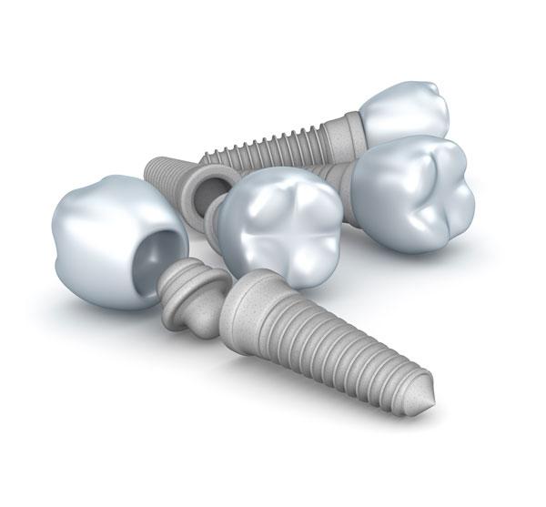 La osteointegración en implantes dentales