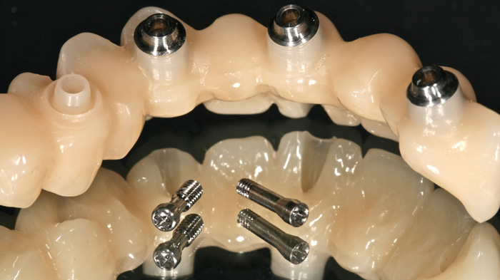 Prótesis dentales sobre implantes dentales
