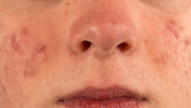 Tratamientos para marcas de acné en hombres