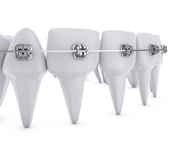 El tiempo y los tratamientos de ortodoncia