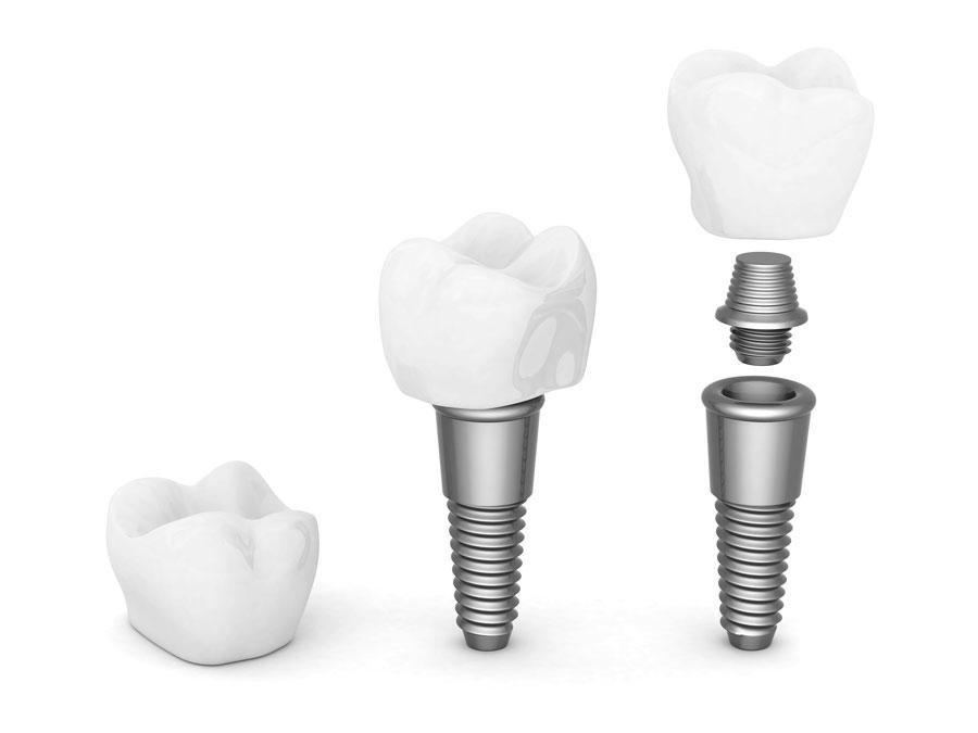 Las partes de un implante dental