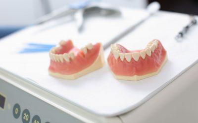 Prótesis dentales: ¿fijas o removibles?