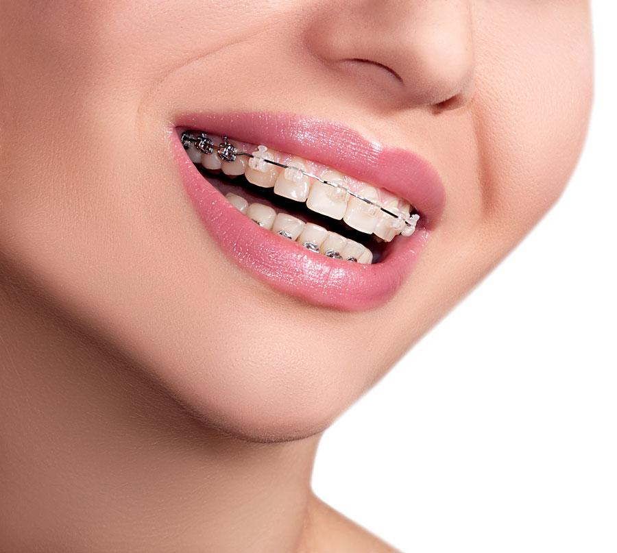 Los brackets y el cepillado de dientes