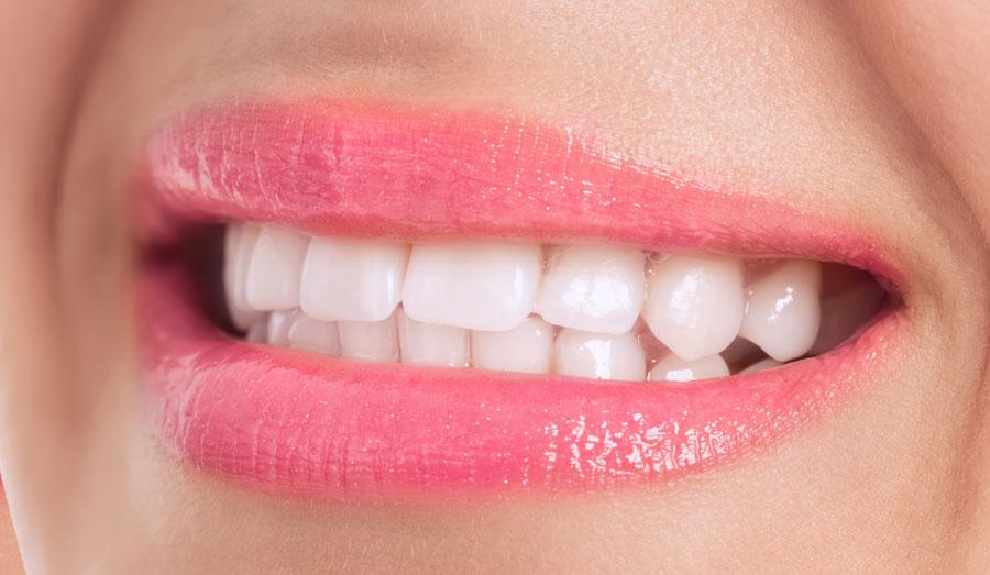 Evita rechinar los dientes si llevas brackets
