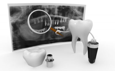 El Titanio: ¿material ideal para los implantes dentales?