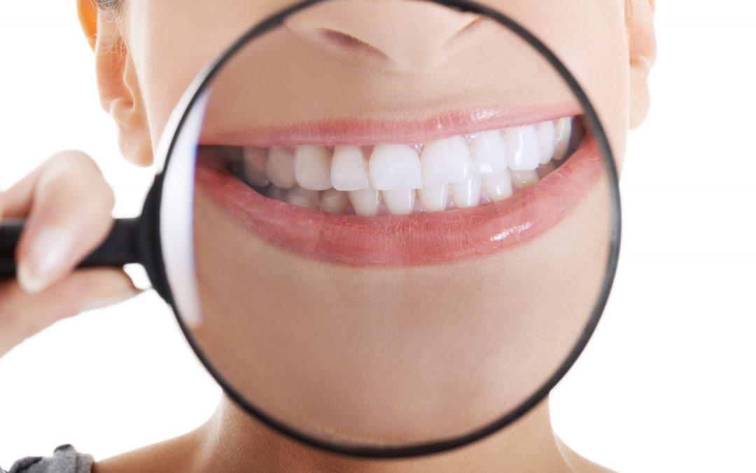 ¿Cómo eliminar las manchas en los dientes?
