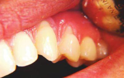 Cómo curar la abrasión dental