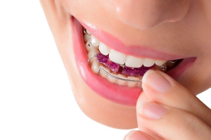 ortodoncia removible barcelona