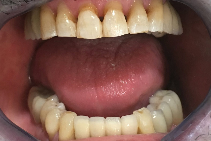Implantes dentales, después de la colocación