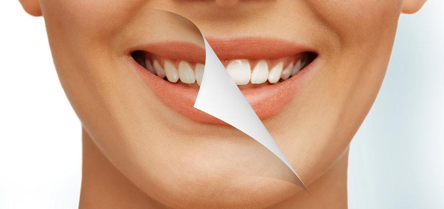 Resultados del blanqueamiento dental