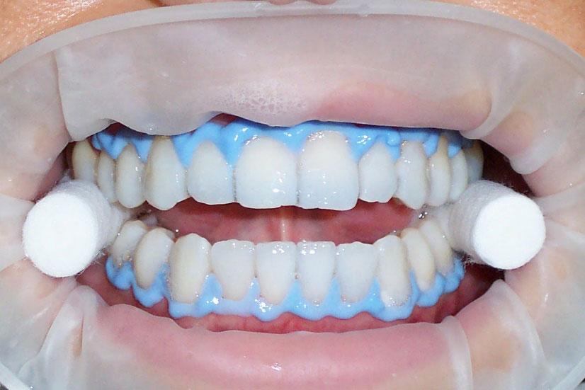 Blanqueamiento dental en clínica