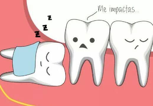 Todo sobre las Muelas del juicio - Axioma Estudi Dental