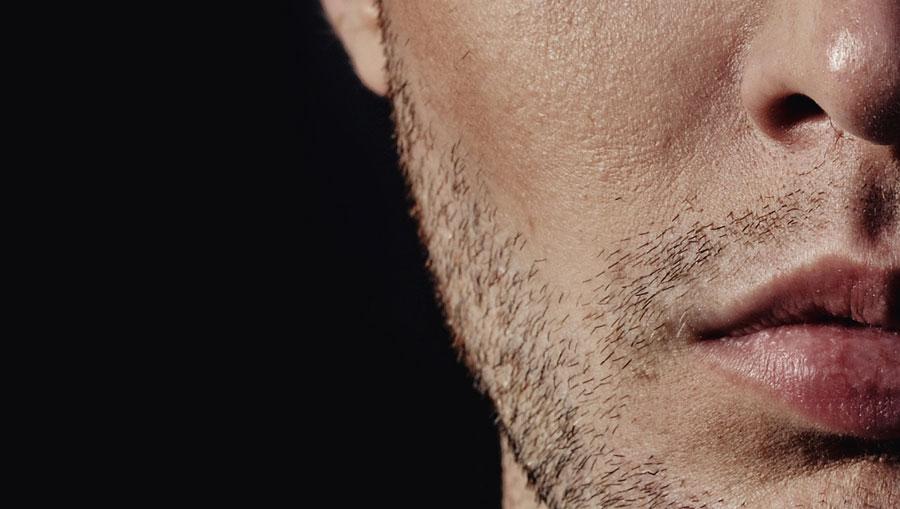 Aumento de labios en hombres