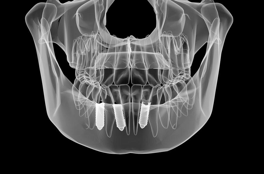 La osteointegración y los implantes dentales