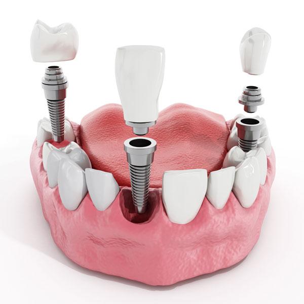 Osteointegración, tiempo y tipo de implante dental