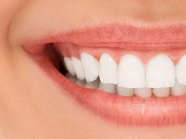 ¿Por qué sufrimos sensibilidad dental?