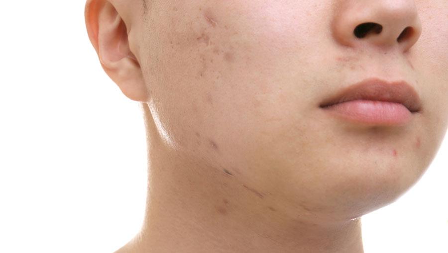 Tratamientos para manchas faciales en hombres