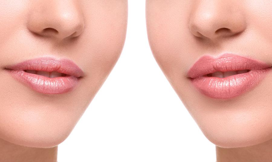 Aumento de labios, resultados