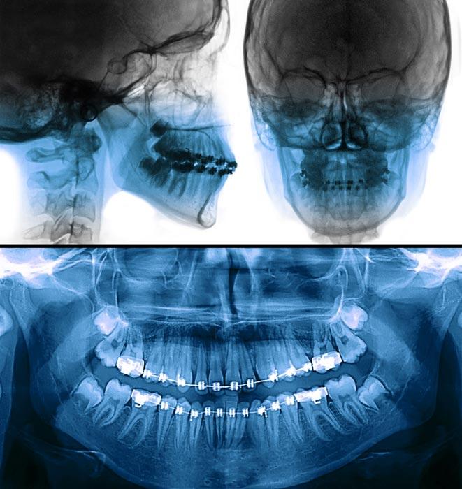 Tratamiento de ortodoncia: estudio
