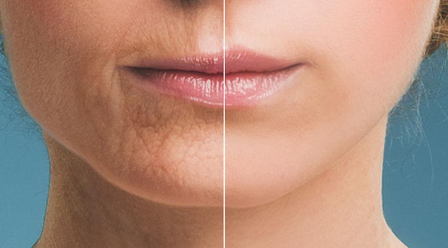 Envejecimiento labios