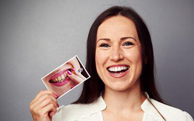Implantes dentales y tabaco: una mala combinación