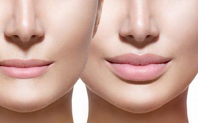Cómo conseguimos resultados naturales con el aumento de labios