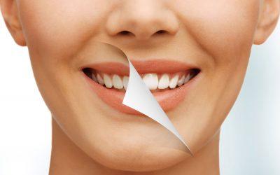 ¿Cuántos tonos aclara el blanqueamiento dental?