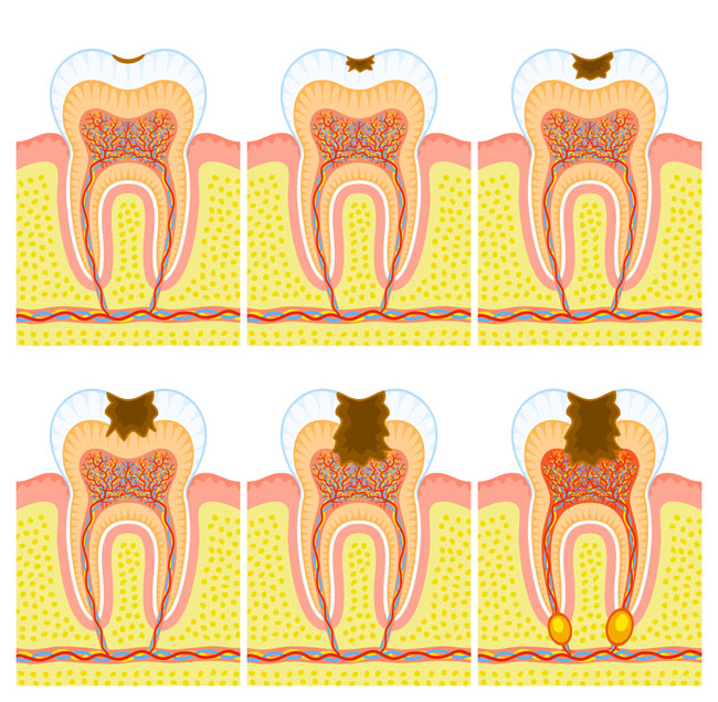 tipos+de+cavidades+dentales+segun+black