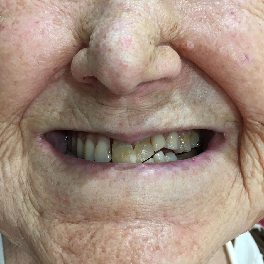 Basilia, después del tratamiento