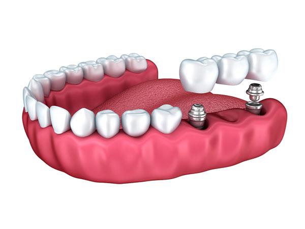 Prótesis e implantes dentales