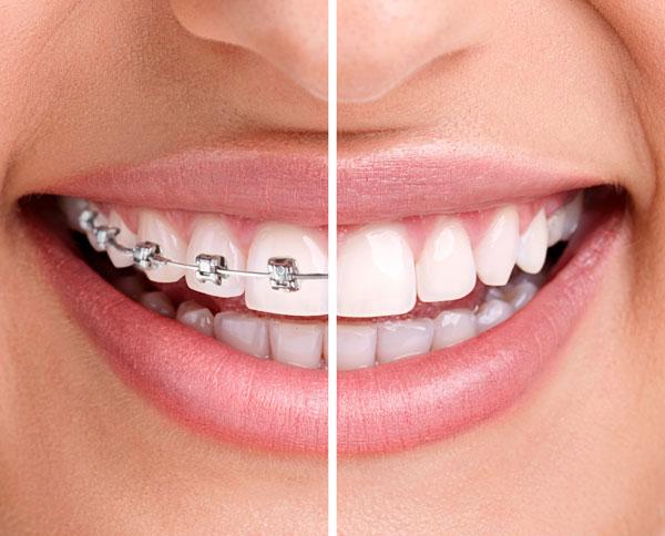 Cómo funciona la ortodoncia