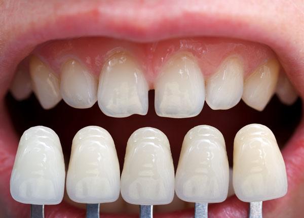 Carillas dentales para eliminar las manchas en los dientes