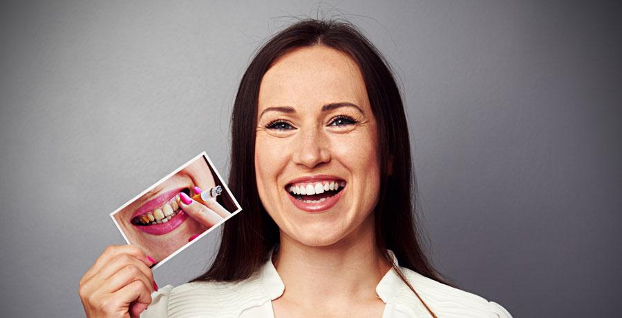 Manchas en los dientes producidas por el tabaco