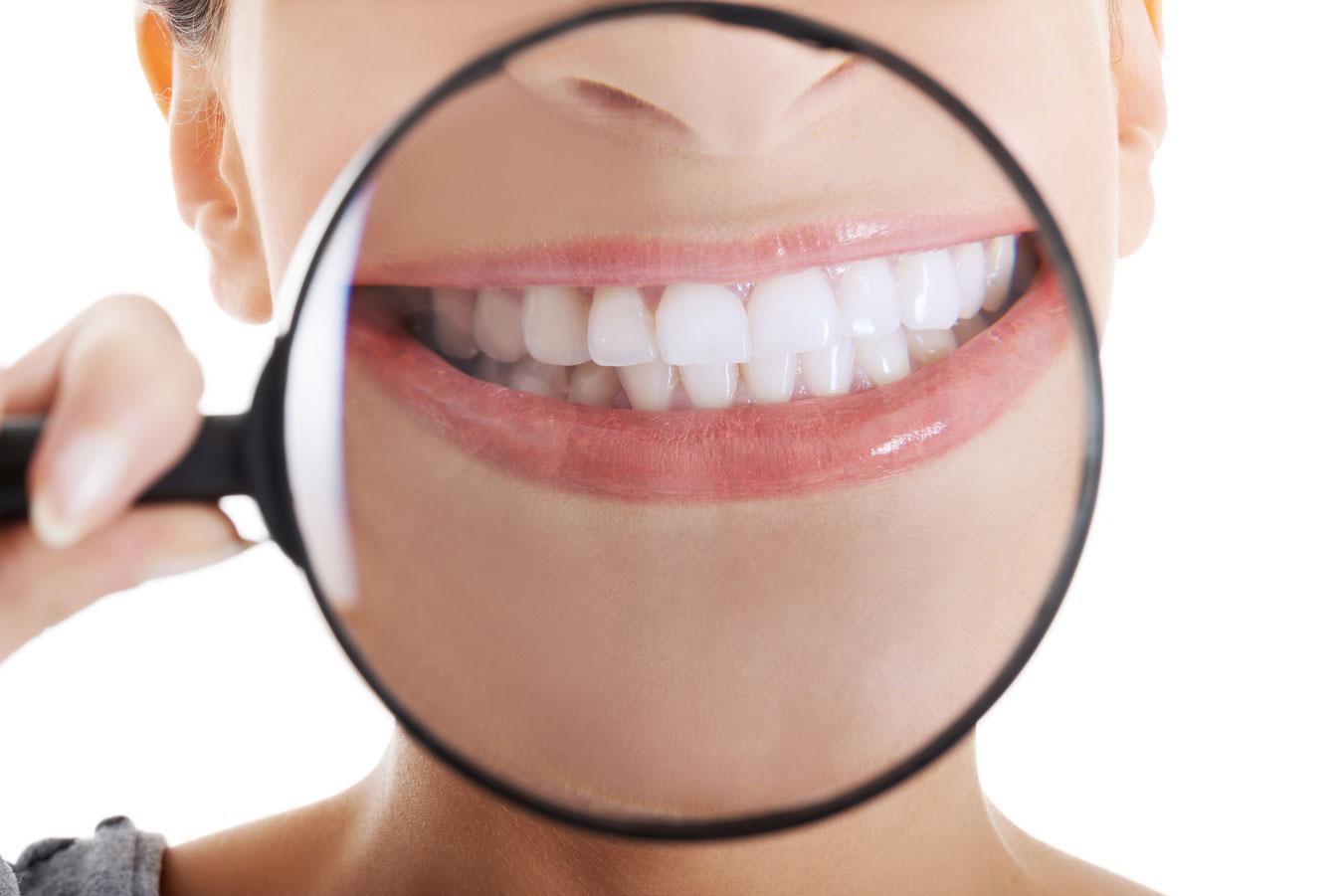 las carillas dentales son para siempre