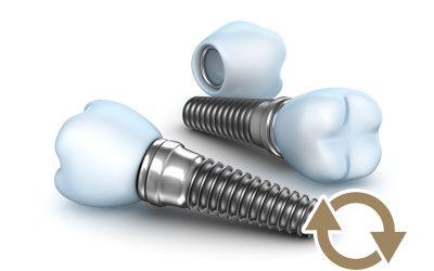 Los cuidados de los implantes dentales