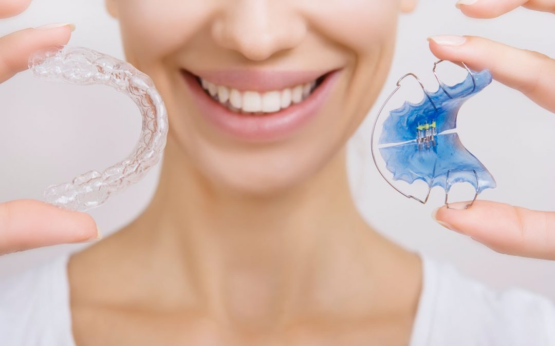 ¿Qué fases tiene un tratamiento de ortodoncia?