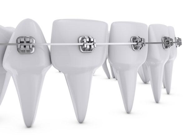 Arcos en ortodoncia