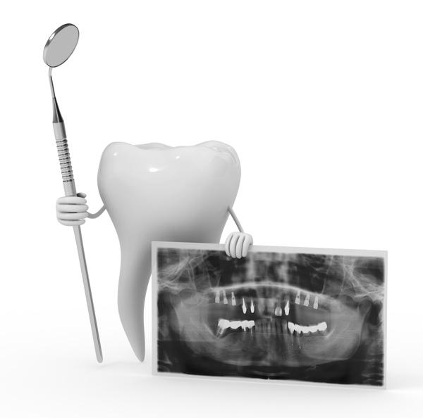 problema implante dental