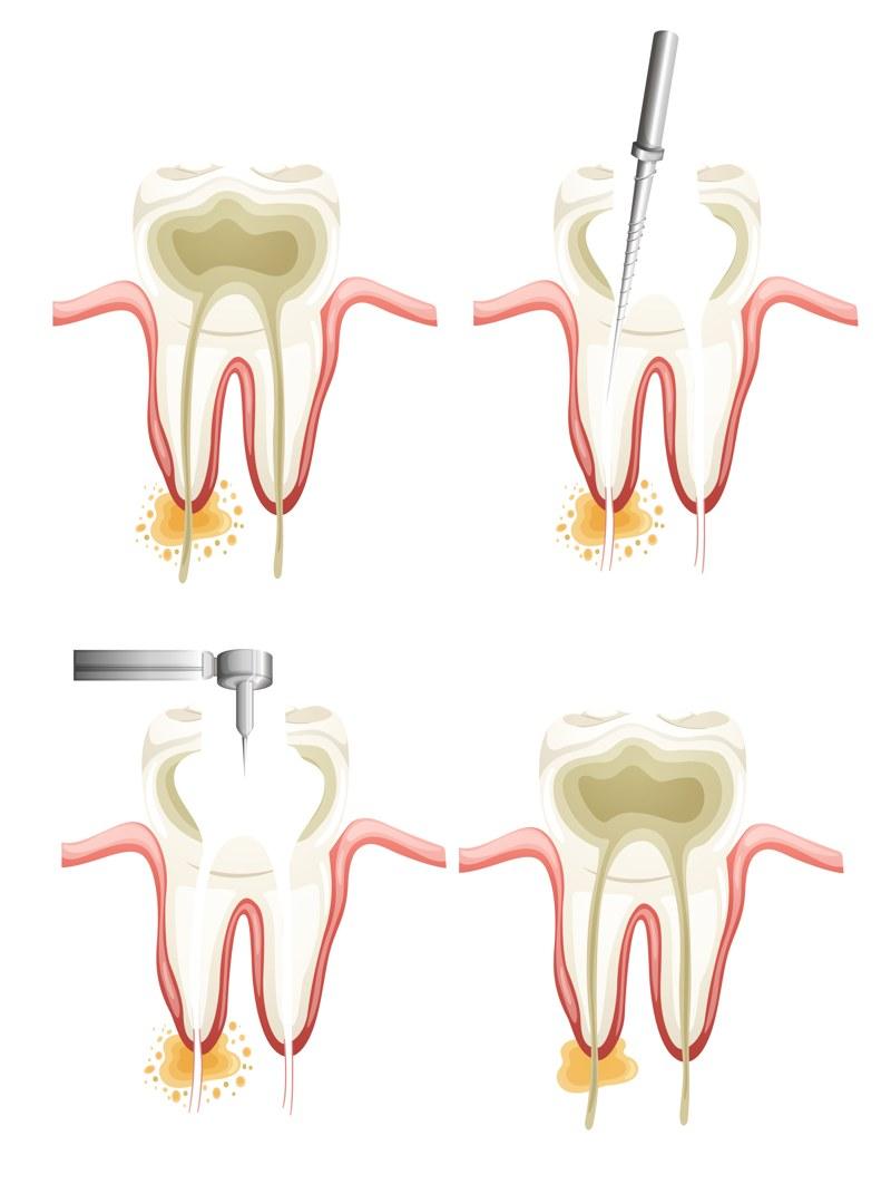 Procedimiento de una endodoncia