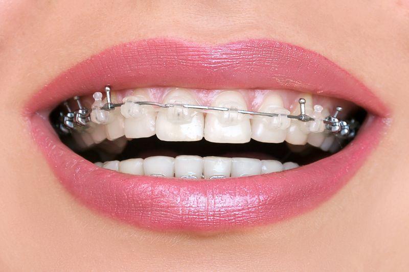 apiñamiento dental antes y después