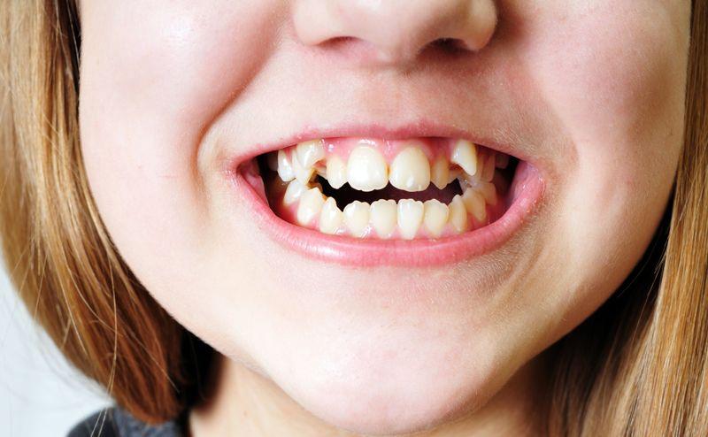 como corregir apiñamiento dental